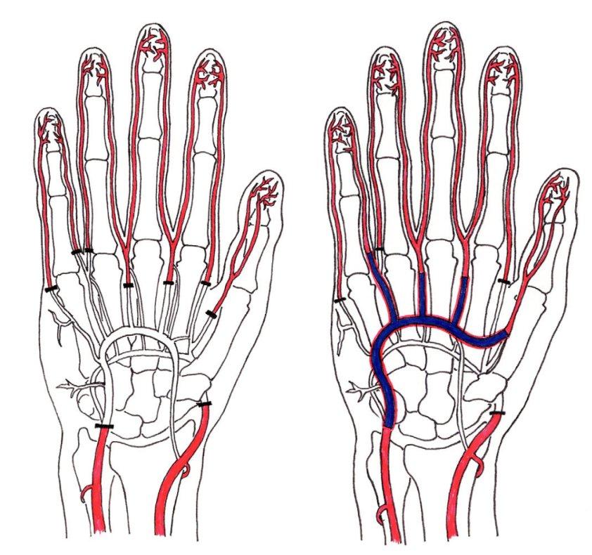 Fig. 5. Diagram of the blood vessel defect
