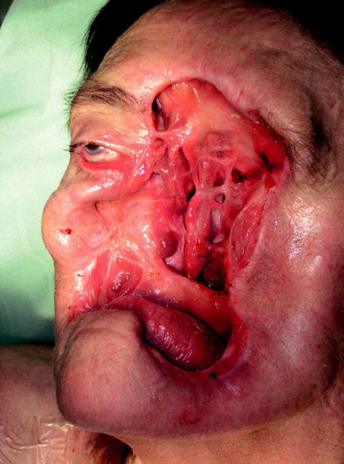 Rozsáhlý defekt obličeje vzniklý po onkologicko-chirurgické fázi terapie.