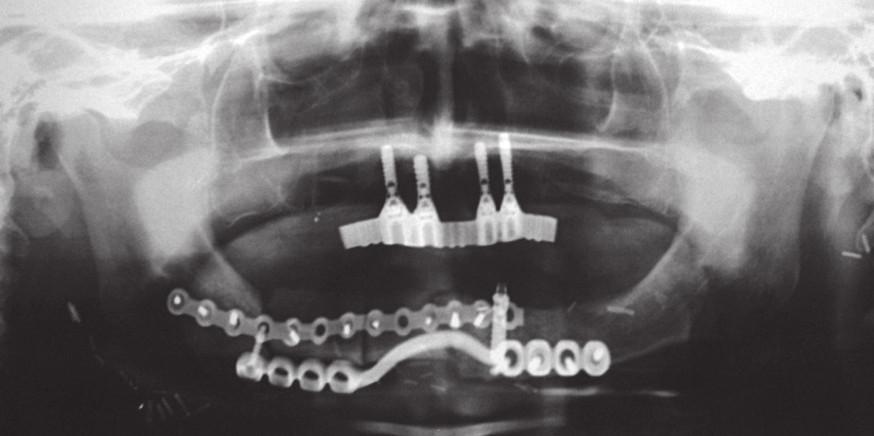 RTG snímek horní a dolní čelisti