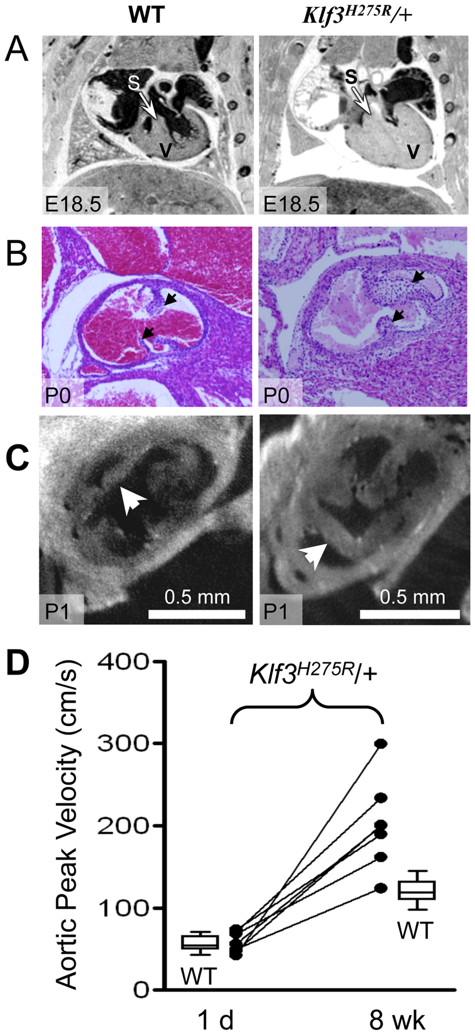 Abnormal hearts and aortic valves in <i>Klf3</i><sup>H275R</sup>/+ neonates.