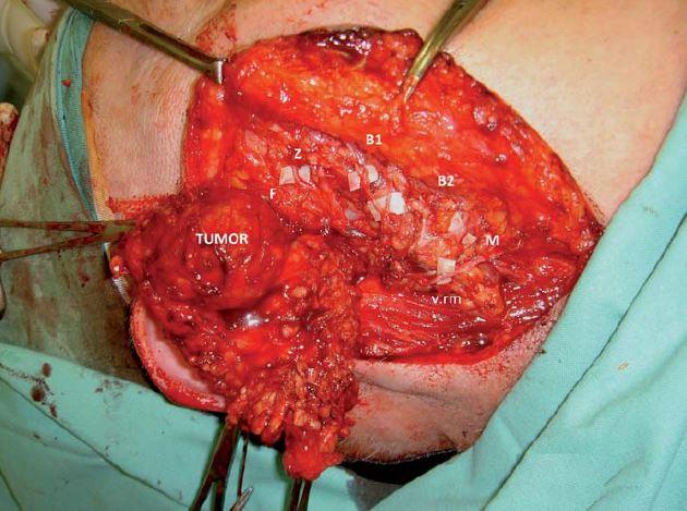 Parciální parotidektomie – peroperační snímek resekce zevního laloku parotidy v bloku s tumorem a vypreparovanou ramifikací n. VII.