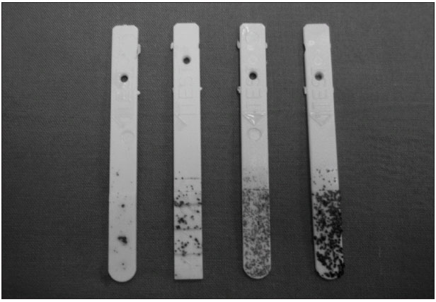Testovací proužky používané při vyšetřování hodnoty bakterií.