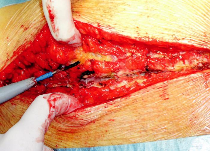 Peroperační snímek dehiscence hrudní kosti Fig. 4. The sternal dehiscence peroperative view