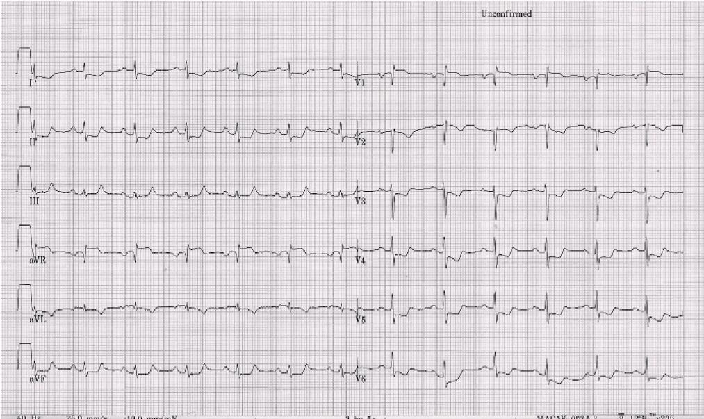 Elektrokardiografické vyšetření s nálezem cca 2mm ST depresí v hrudních svodech + I, aVL a ST elevace ve svodech aVR a V1.