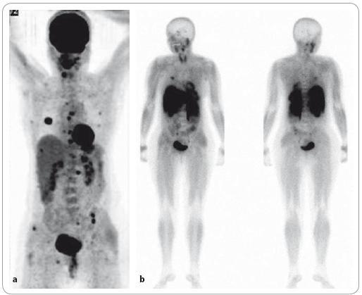 """Nově diagnostikovaný mnohočetný myelom ve stadiu III. <sup>18</sup>F-FDG PET/CT vyšetření – MIP obraz – """"maximum intenzity projection"""" (a) a celotělová <sup>99m</sup>Tc-MIBI scintigrafie (b). Na obrazu MIP lze diferencovat vícečetná ložiska hypermetabolizmu glukózy v oblasti hrudníku, páteře a pánve, při <sup>99m</sup>Tc-MIBI scintigrafii je počet fokálních lézí evidentně nižší."""