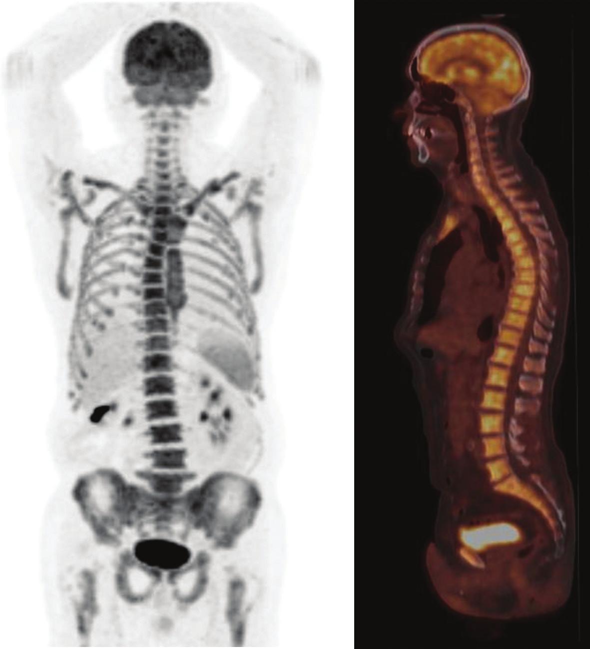 Obr. 3c. PET/CT s FDG. Obraz kompletnej metabolickej remisie po dvoch cykloch chemoterapie (R-CHOP). Homogénna, difúzna a symetrická akumulácia FDG v kostnej dreni po liečbe stimulanciami hemopoézy.