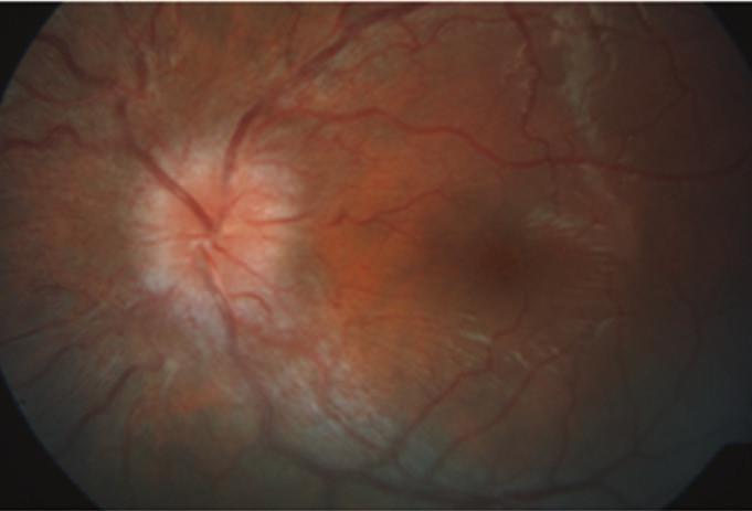 Zlepšující se nález s ustupujícím edémem terče zrakového nervu na levém oku  po několika týdnech léčby