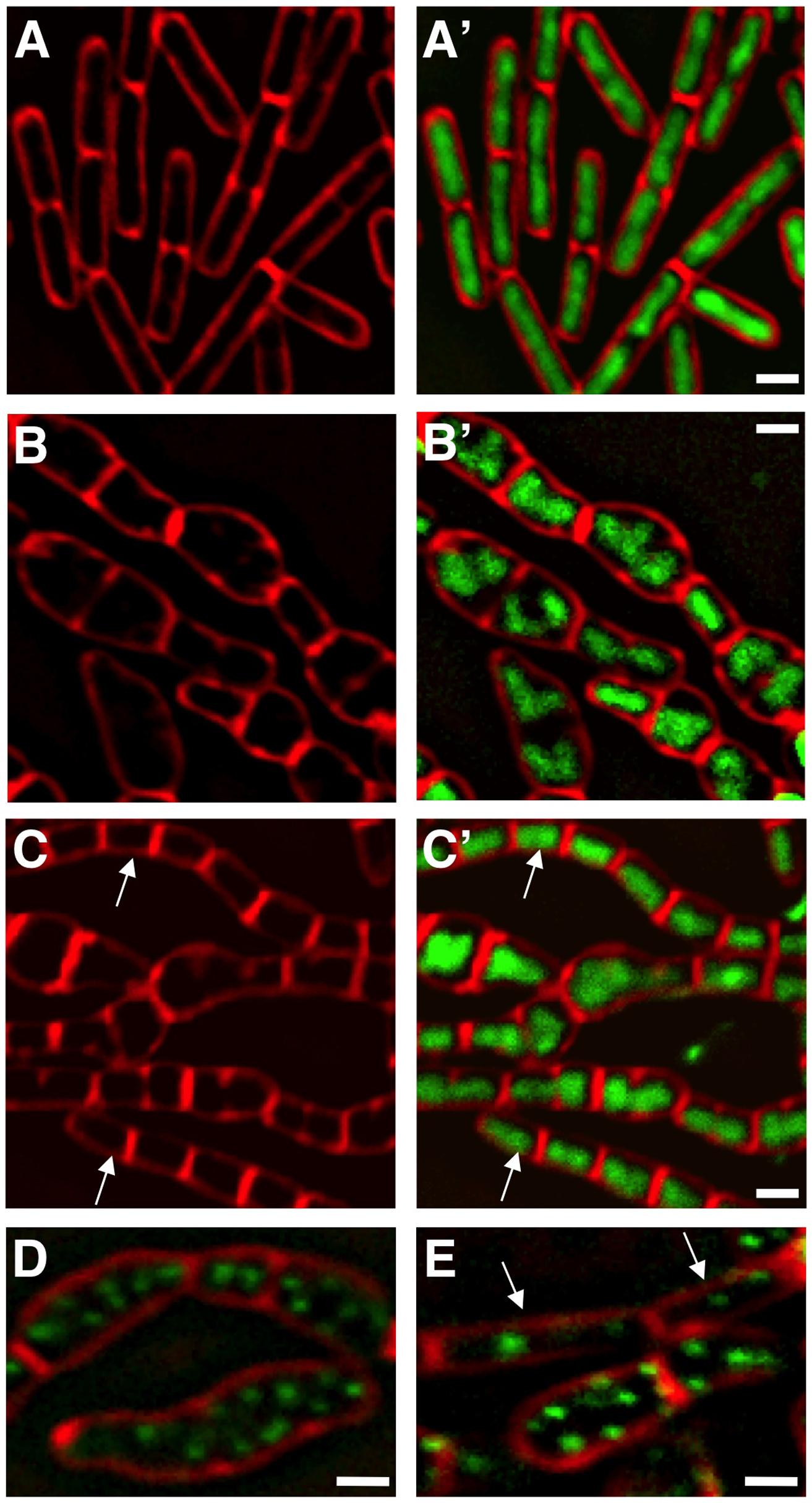 Δ<i>manA</i> phenotype is partially suppressed by slowing growth and replication.