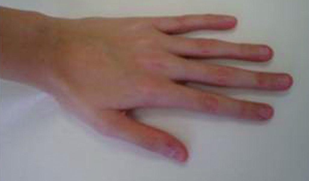 Ruka 11letého chlapce s Marfanovým syndromem.  Typické jsou dlouhé štíhlé prsty. Chlapec roste od batolecího věku nad 97. percentilem tělesné výšky a má subluxaci očních čoček. Největším celoživotním rizikem je ruptura aortálního aneuryzmatu.