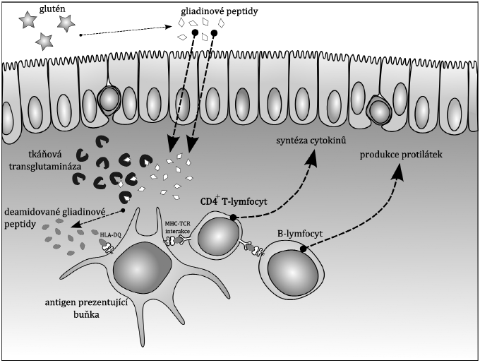 Etiopatogeneze celiakie. Příklad objasněného společného působení predispozičních antigenů HLA komplexu (genetického pozadí) a výživy (ekologických faktorů) při vzniku autoimunitní poruchy. Popis obrázku se nachází v textu.