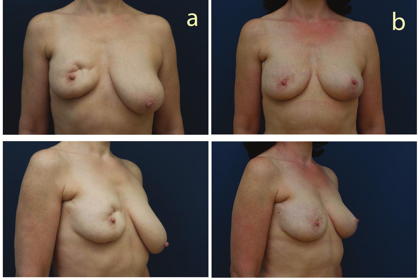 Pacientka po parciální mastektomii vpravo před operací a 6 měsíce po operaci (fatgrafting pravého prsu a modelace levého prsu) Fig. 2: Patient after partial mastectomy (left) and six months after right breast fat grafting and left breast mastopexy (right)