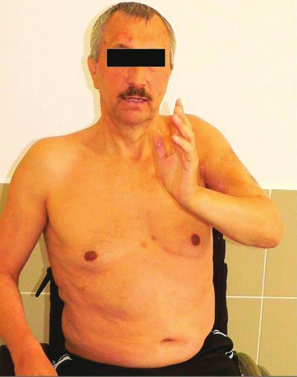 Funkční snímek pacienta po provedení artrodézy ramene Fig. 3: Functional range of a patient treated by shoulder arthrodesis