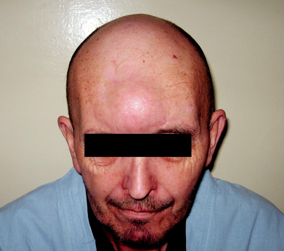 Kulovité středočárové tuhé zduření frontálně bez zánětlivé reakce na kůži s palpační bolestivostí. S ohledem na předchozí operace VDN uvažováno o mukokéle čelní dutiny