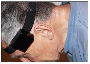 Umístění monitorovací jednotky na hlavě pacienta