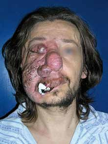 Angiomatóza obličeje, která postupně progredovala asi od 5 let. Tampon přichycený stehem řešil problém se spontánním krvácením.