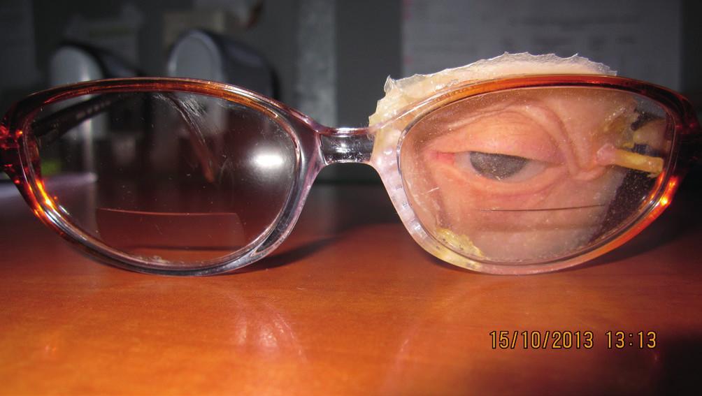 Detail epitézy na ráme okuliarov, pohľad spredu