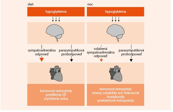 Schéma. Predpokladané mechanizmy hypoglykémiou indukovaných arytmií počas dňa a noci u  pacientov s DM2T a s KV chorobami alebo s dvoma KV rizikovými faktormi. Spracované podľa [5]