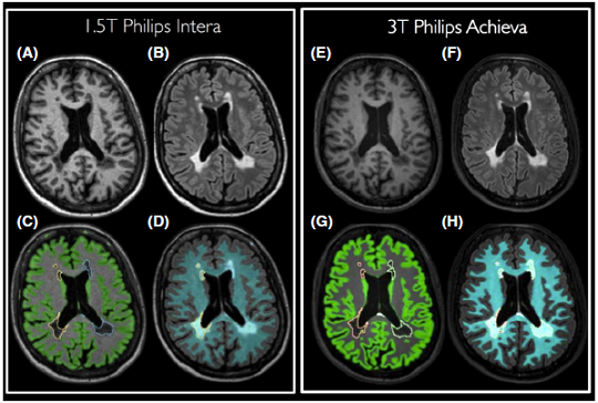 Visualization of MSmetrix segmentation results for the 1.5T (A–D) and 3T (E–H) scan of a randomly selected MS patient. T1 scans are shown in (A) and (E), FLAIR scans in (B) and (F). Lesion and GM segmentations are superimposed on the T1 scan, as displayed in (C) and (G). Finally, lesion and WM segmentations are visualized on the FLAIR scan in (D) and (H).