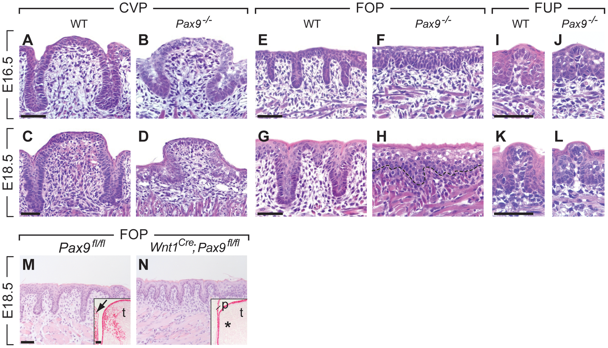 Arrest of CVP and FOP development in <i>Pax9</i>-deficient mouse embryos.