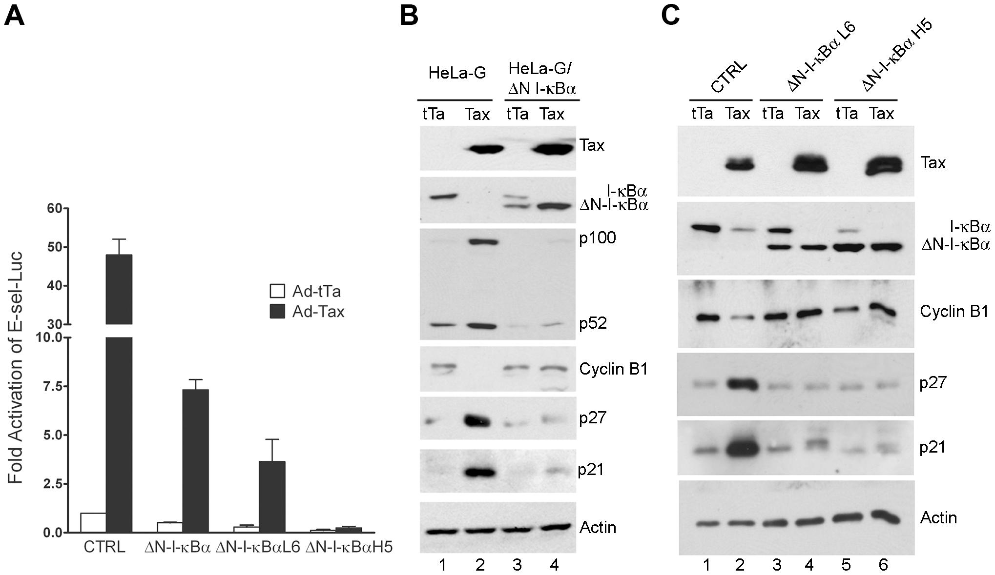 ΔN-I-κBα, a degradation-resistant form of I-κBα, blocks Tax-mediated activation of NF-κB, induction of p21 and p27, and down-regulation of cyclin B.