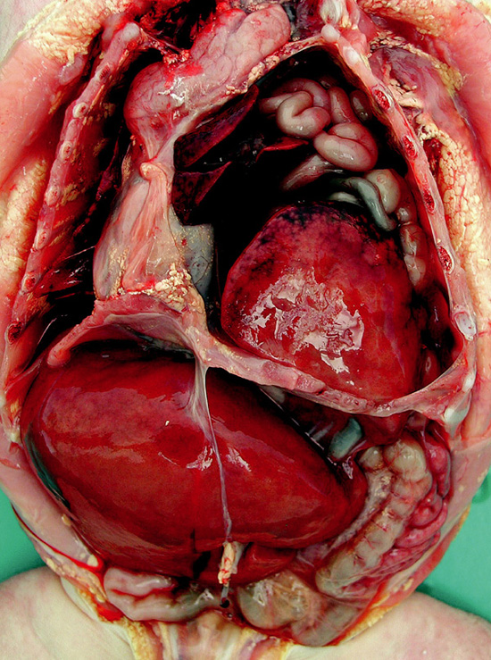 Makroskopický průkaz těžké hypoplazie plic u levostranné CDH: celková hmotnost plic 26,1 gramů (norma 60,1±16,6 gramů), poměr hmotnost plic/hmotnost pacienta 0,007 (dolní hranice normy: 0,012). Publikováno se souhlasem Ústavu patologie VFN a 1. LF UK