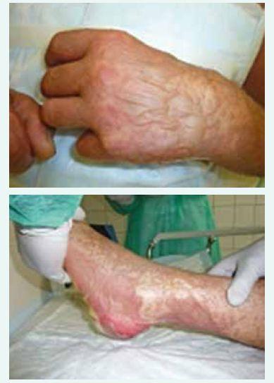 a obr. 3. Splývající buly a počínající epidermolýza levé ruky a nohy vstupně.