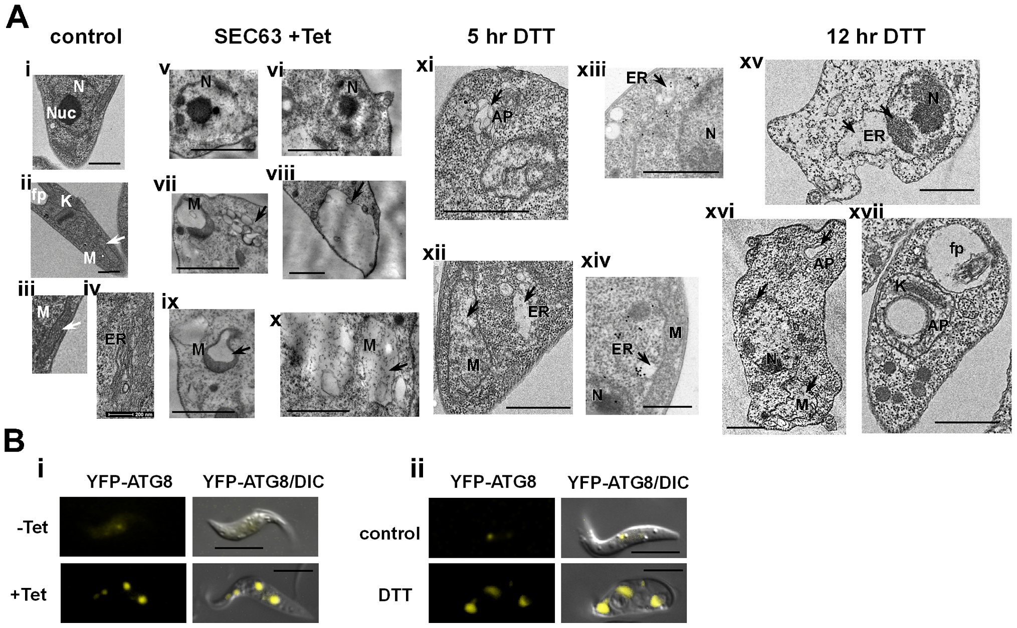 TEM of SLS-induced cells demonstrating morphological changes characteristic of apoptosis.