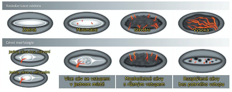 Stupeň perfuze a cévní morfologie endometriálního nádoru (terminologie IETA, International Endometrial Tumor Analysis)