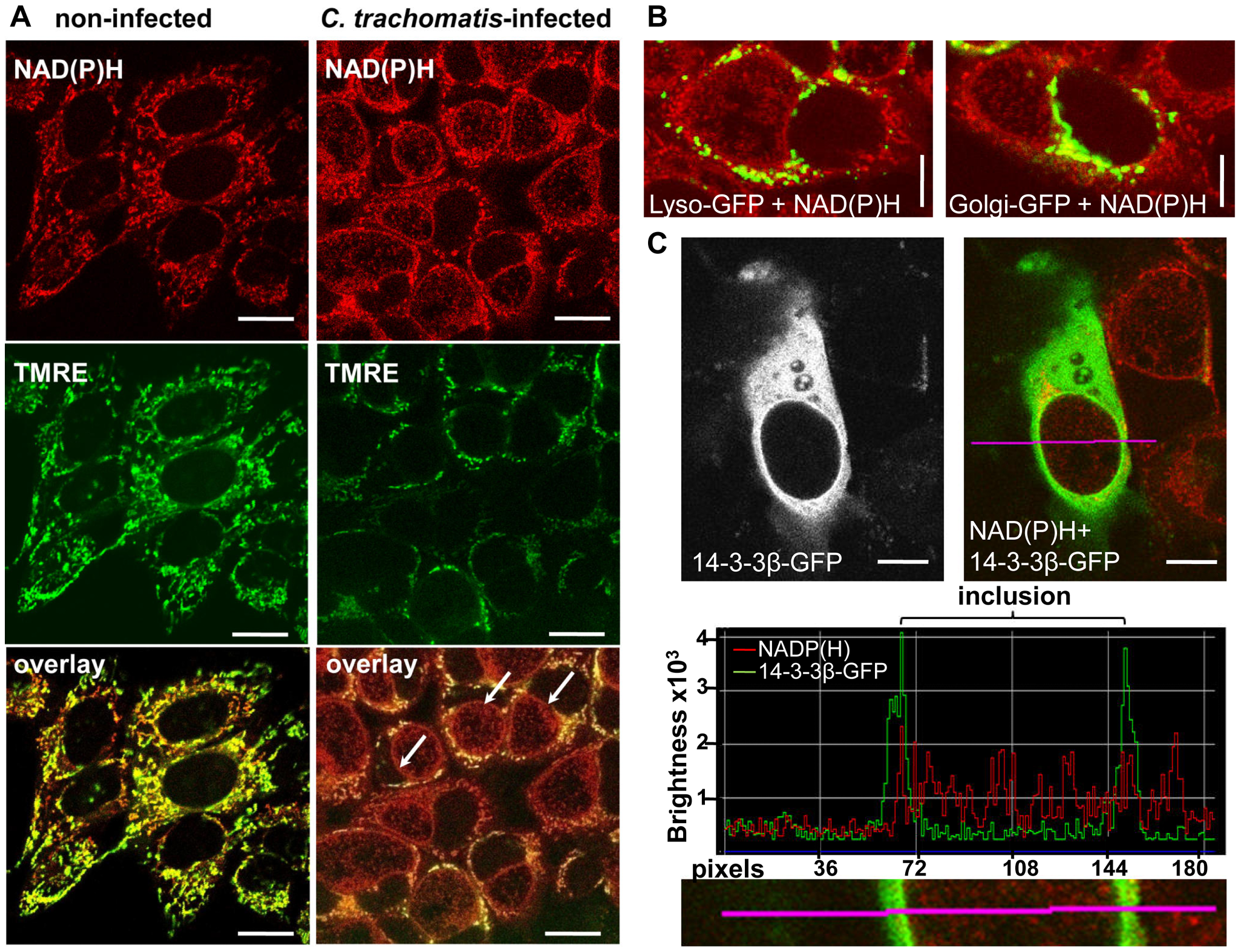 Non-mitochondrial NAD(P)H fluorescence in <i>C. trachomatis</i>-infected cells.