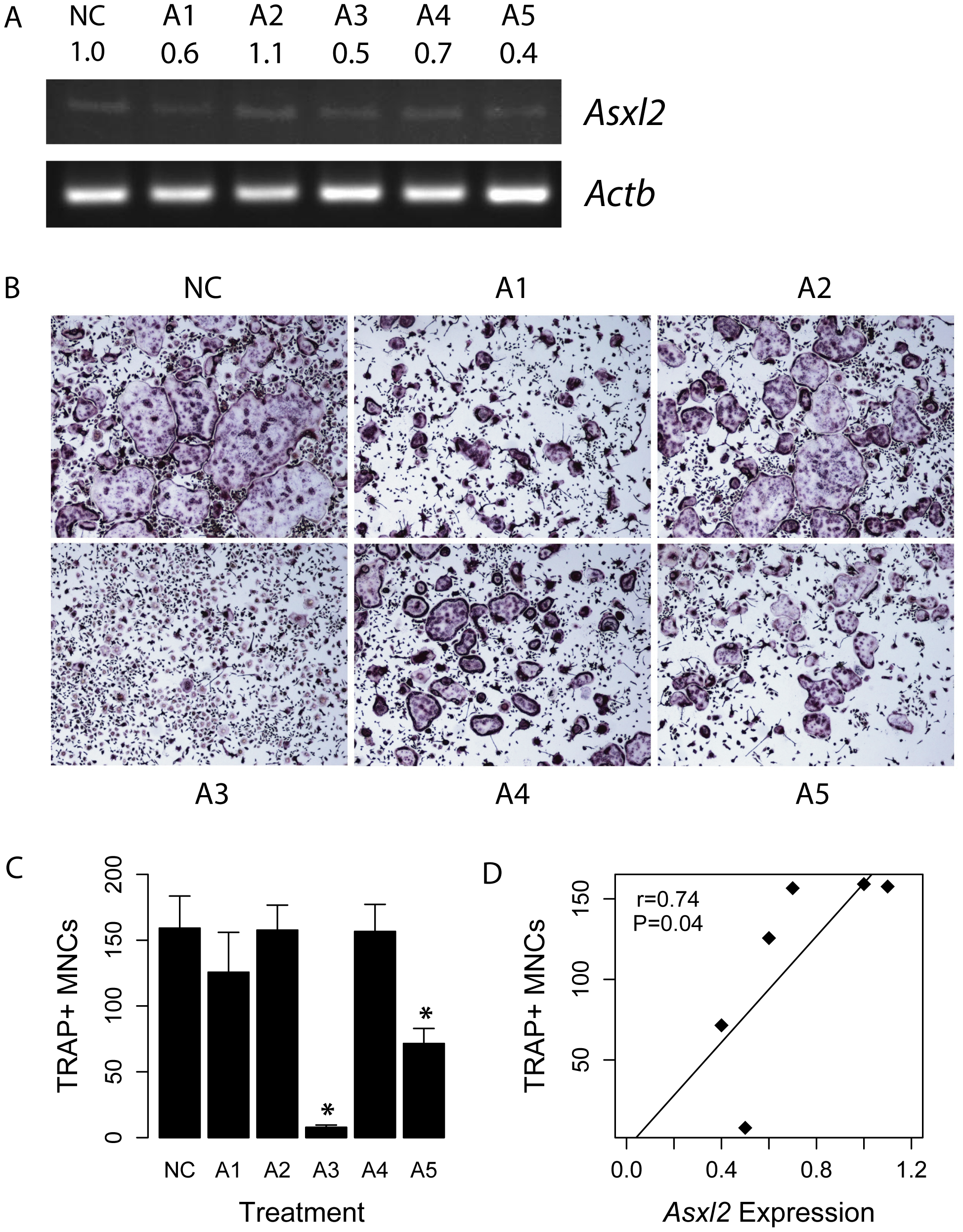 <i>Asxl2</i> is a regulator of osteoclastogenesis.