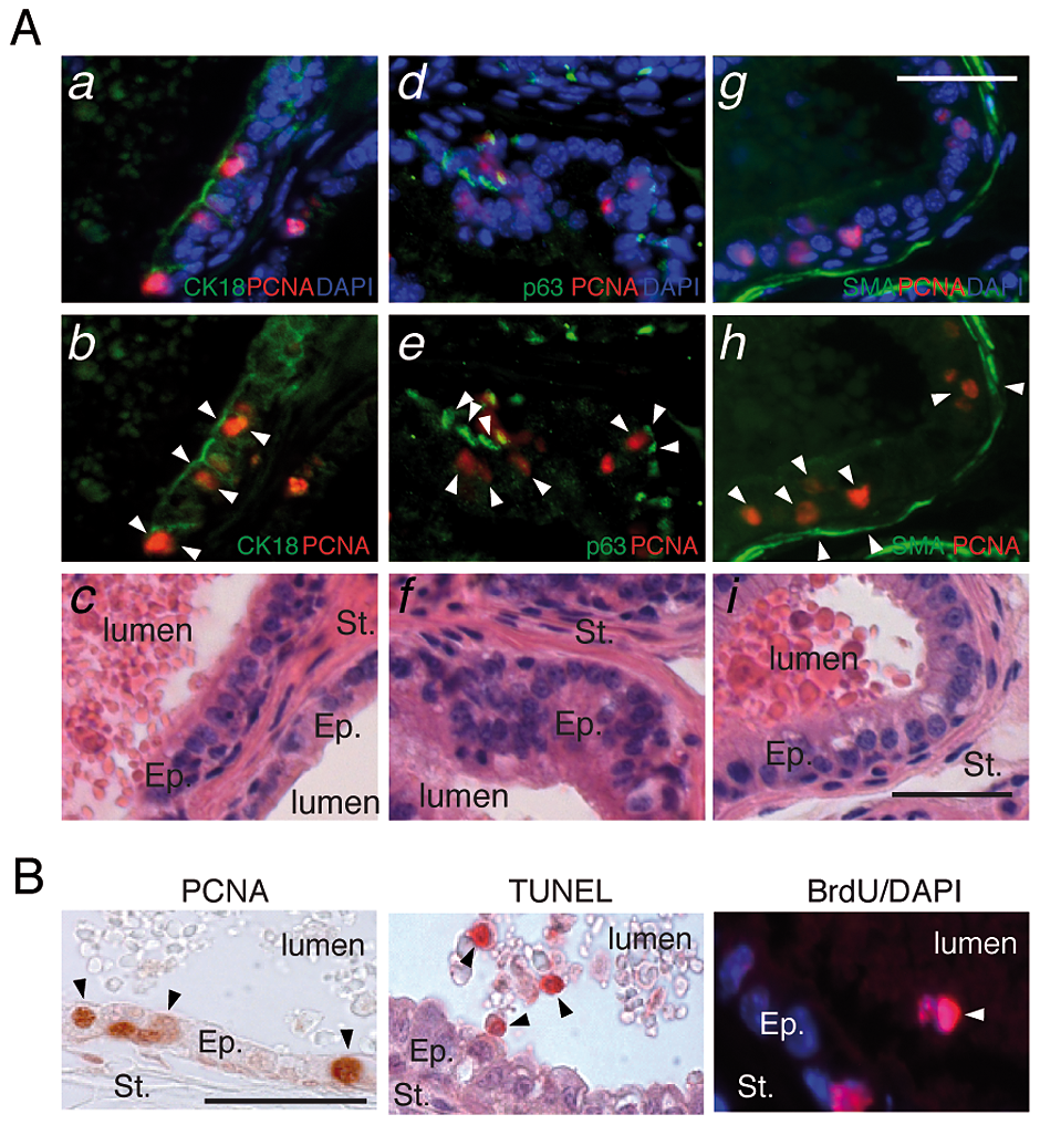 LXR null mice exhibit aberrant epithelial cell renewal.