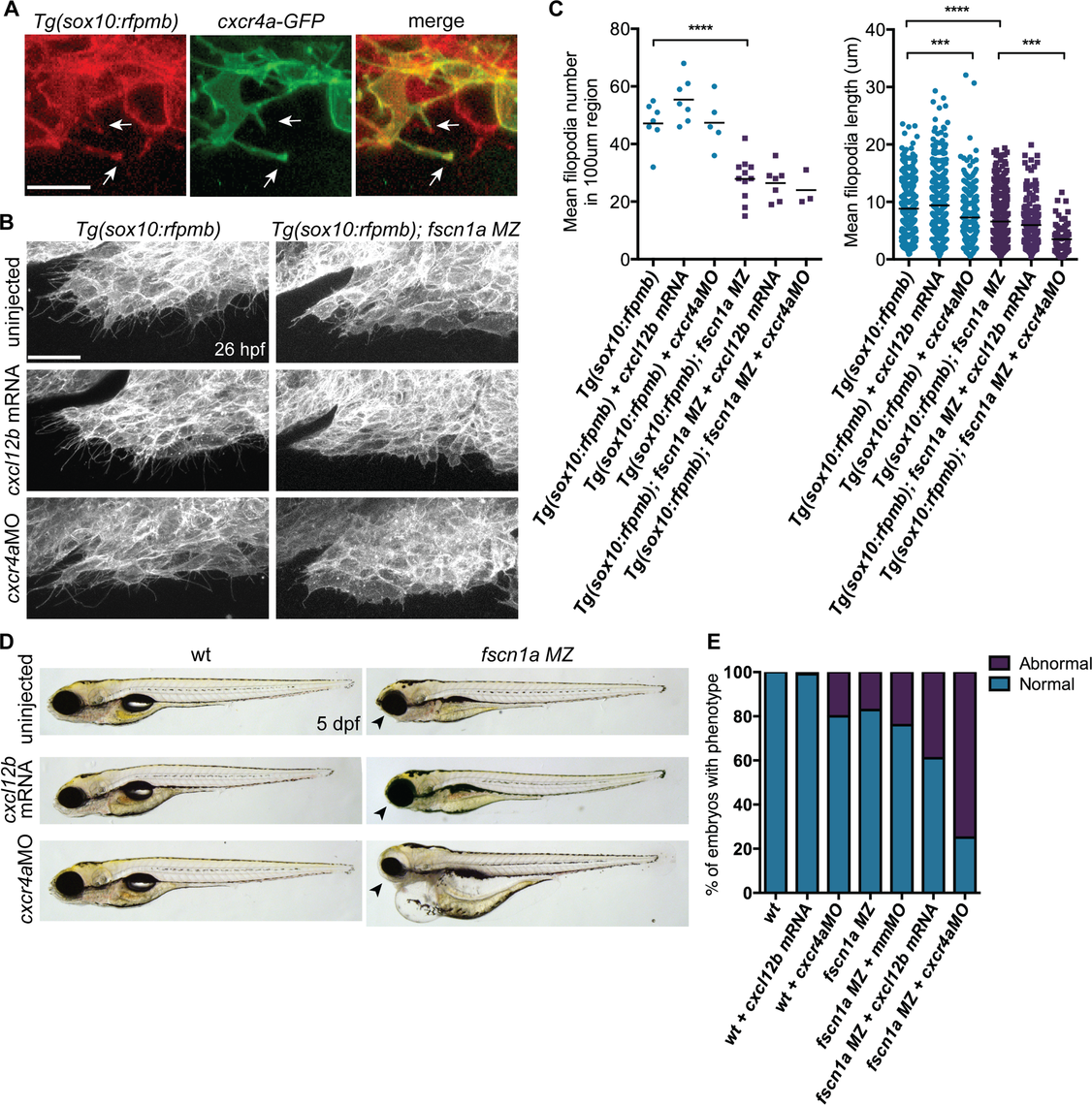 <i>fscn1a</i> cooperates with <i>cxcr4a/cxcl12b signaling</i> to regulate directional cranial NC migration.