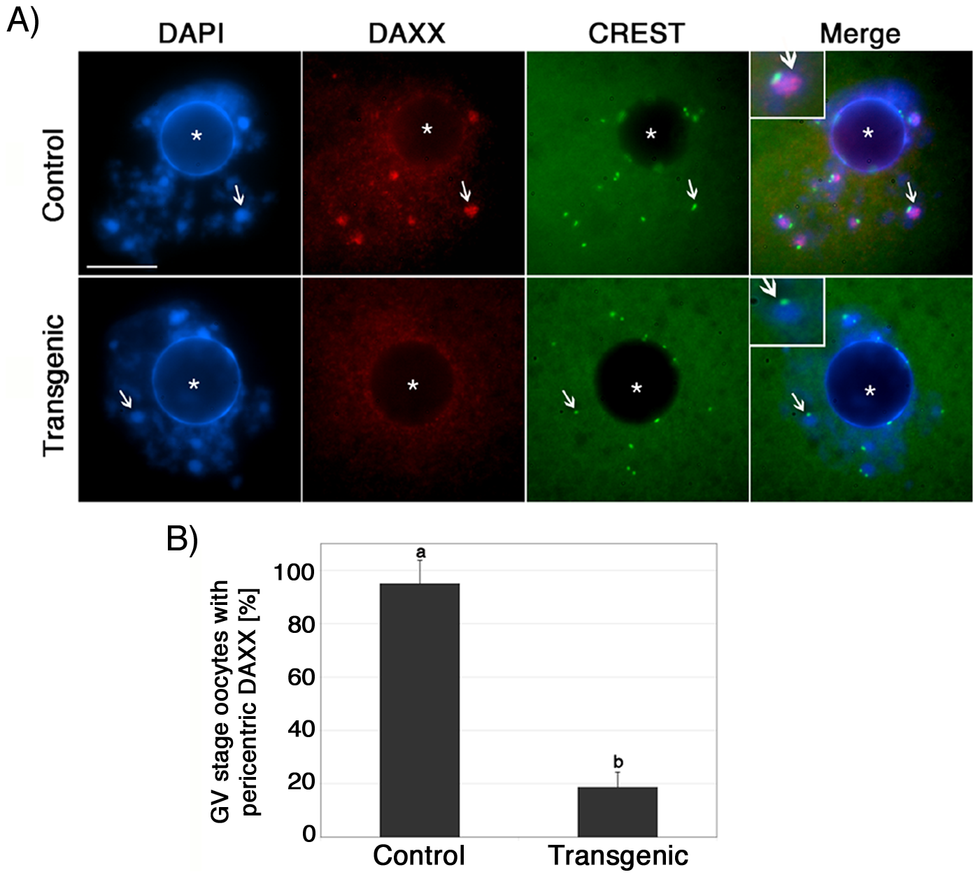 ATRX is required to recruit the transcriptional regulator (DAXX) to pericentric heterochromatin in mammalian oocytes.