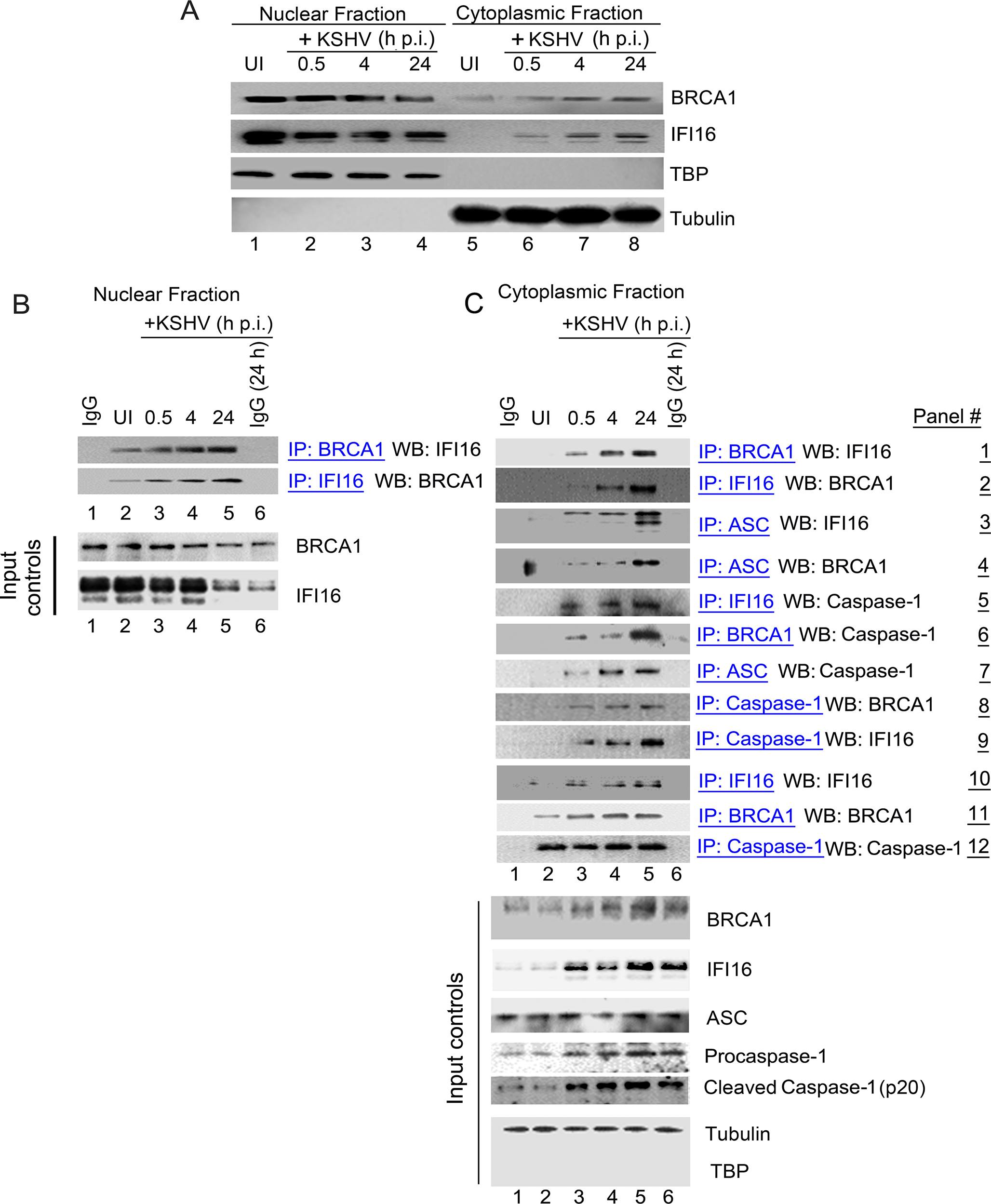 Cytoplasmic distribution of BRCA1 and IFI16 during <i>de novo</i> KSHV infection and BRCA1 is part of the IFI16 inflammasome complex.