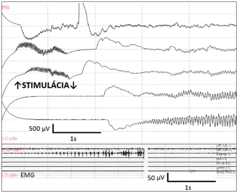 Obr. 3b) Spontánne pretrvávajúce následné výboje prechádzajú do synchrónnej aktivity epileptického záchvatu, ktorý bol zaznamenaný na EMG a klinicky sa prejavil konvulziami. Ustúpil po podaní ľadového Ringer roztoku na mozgový kortex.