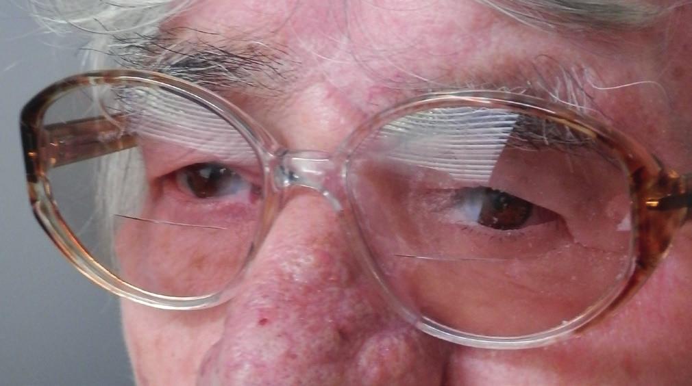 Pacientka s epitéziou ľavej očnice na ráme okuliarov nasadenou na tvár