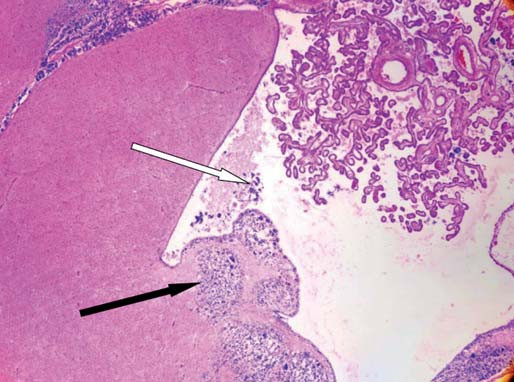 Histologický řez mozkem.