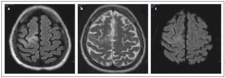 Stejný pacient jako na obr. 1., vyšetření za 2,5 měsíce. Fig. 2. The same patient as in Fig. 1, examination 2.5 months later.