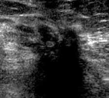 Nepravidelná nehomogenní area s mohutným akustickým stínem. Porušení podkoží, zesílení Coopperových ligament – jizva.