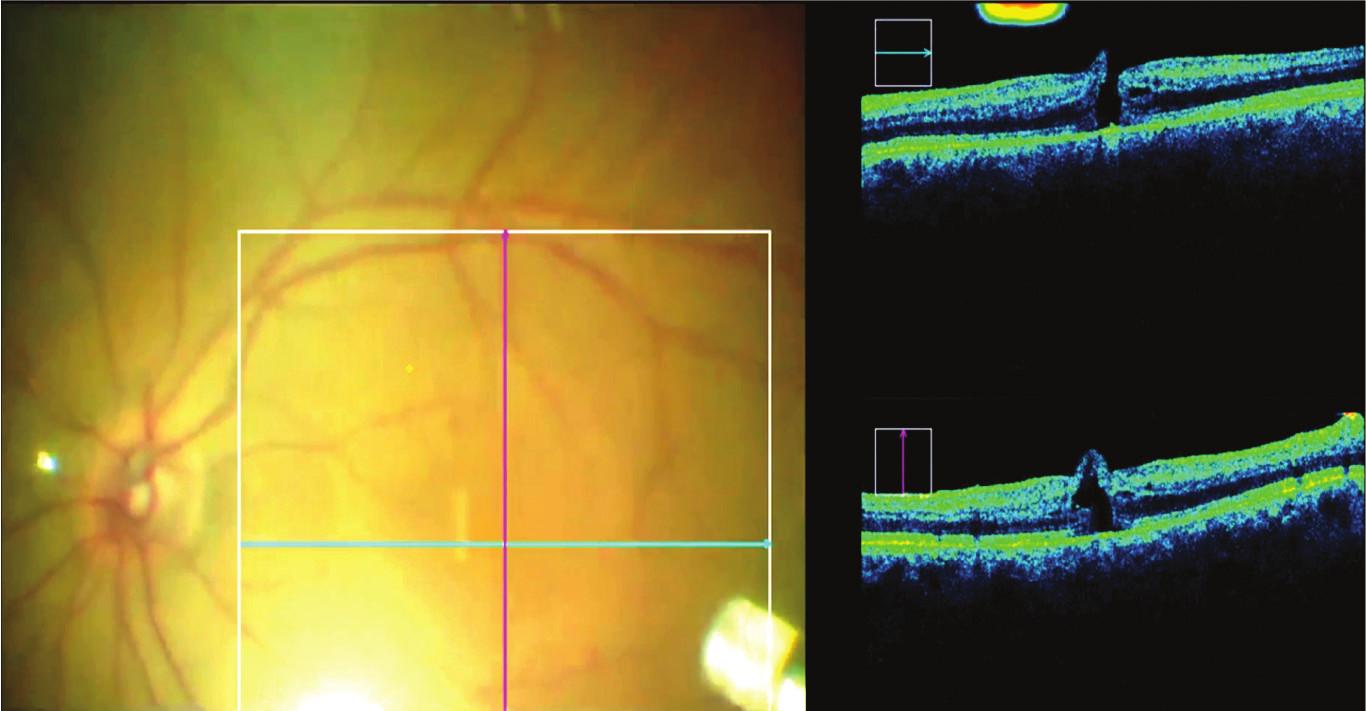Intraoperační OCT umožňuje kontrolu makuly i při výměně za vzduchovou tamponádu, která výrazně ruší pohled na oční pozadí