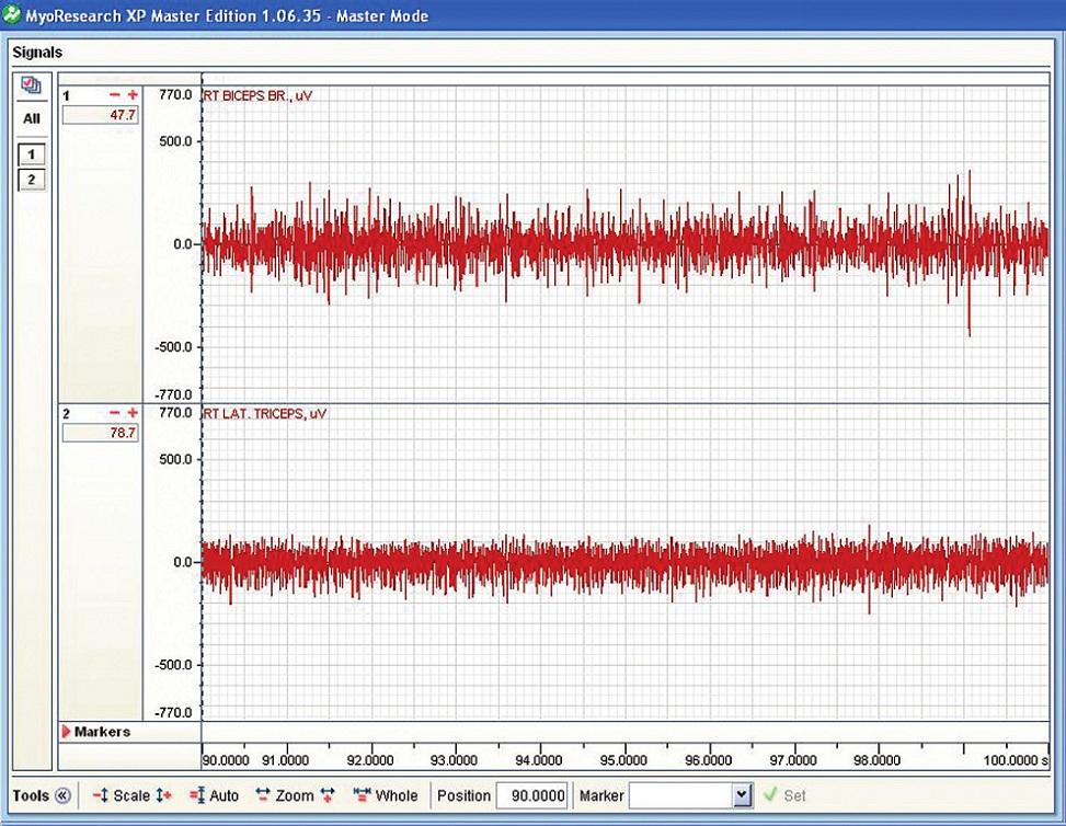 Příklad nativního EMG m. biceps brachii (horní záznam) a m. tricps brachii (dolní záznam) při držení činky při zapnutém vibračním modu.