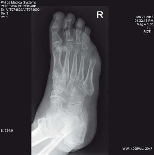 Skiagram pravé nohy dva měsíce po zákroku.