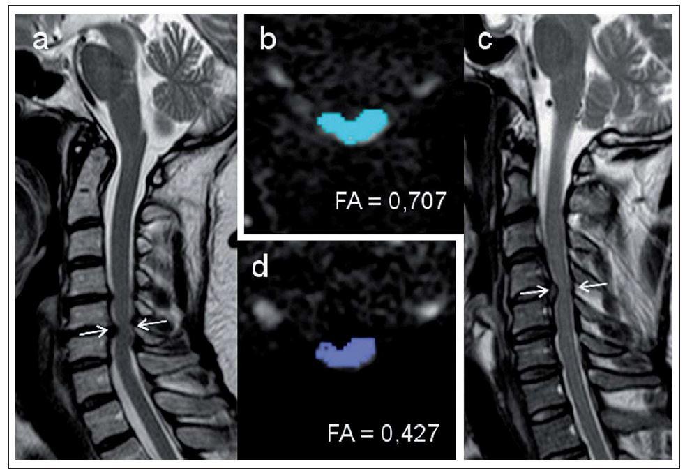 a–d) Měření parametrů MR zobrazení tenzorů difuze u dvou pacientů s míšní kompresí.