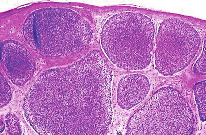 Nodulárny BCC – ostro ohraničené noduly bazaloidných nádorových buniek v derme (H&E, 20x)