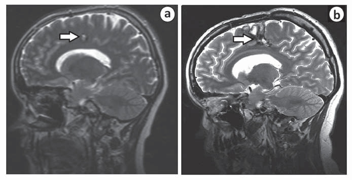 MR u pacientky s pooperačním neurologickým deficitem před operací (a) a po ní (b).