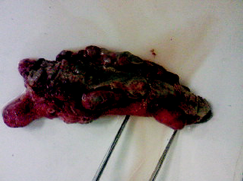 Gangrenózny apendix s divertikulózou, divertikulitídou a perforáciou na apexe apendixu vermiformis