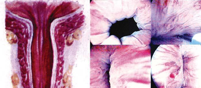 Chondrocyty jsou odebrány a smíchány s alginátem in vitro, suspenze aplikována pomocí cystoskopické injekce při léčbě močové inkontinence.