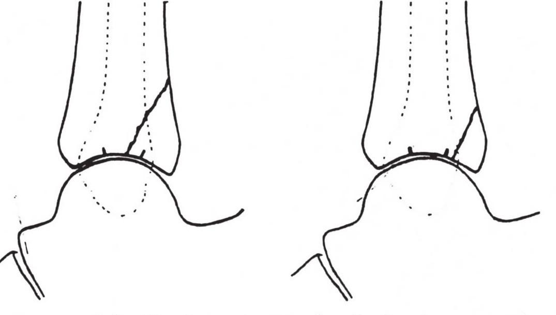 """Nelson-Jensenova klasifikace z r. 1940 <i>""""Classic fracture""""</i>postihující více než třetinu kloubní plochy a <i>""""minimal fracture""""</i>. Převzato z [24]. Fig. 3: Nelson-Jensen classification published in 1940 <i>""""Classic fracture""""</i> involved more than one third of articular surface and <i>""""minimal fracture""""</i>. Adapted from [24]."""