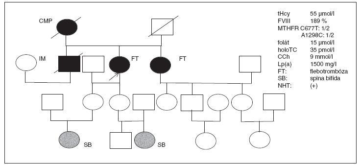 Rodokmen pacientky s opakovanou flebotrombózou z rizikové rodiny s nálezem zvýšené aktivity koagulačního faktoru VIII a výskytem spina bifida u obou vnuček – podrobnosti v textu.