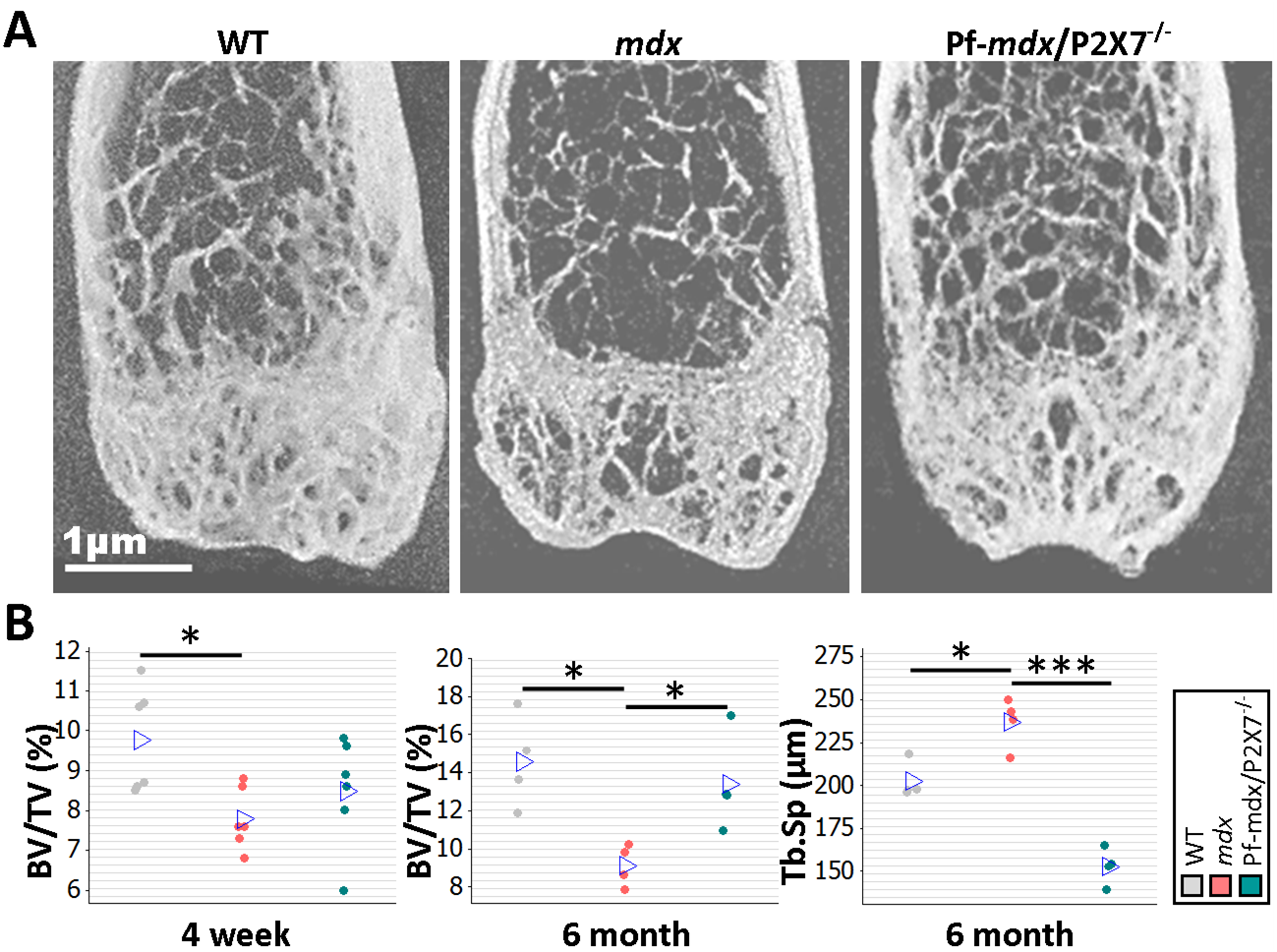 <i>P2RX7</i> ablation reduces <i>mdx</i> bone loss.